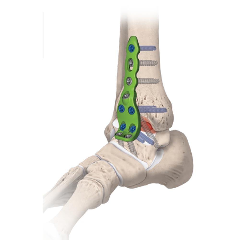 artrodeza-glezna-3